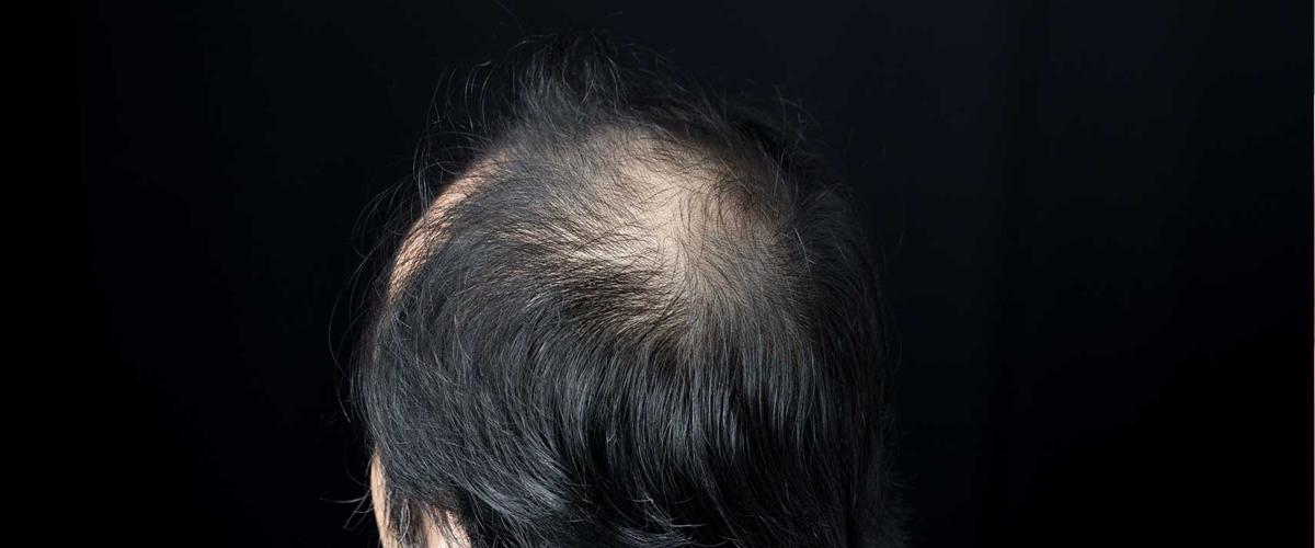 男性型脱毛